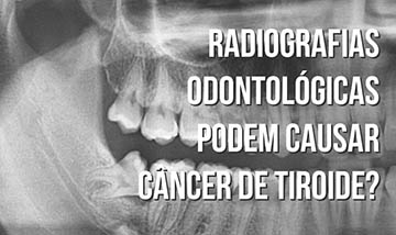 Radiografias odontológicas podem causar câncer de tiroide?
