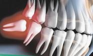 Fim do medo: o que você precisa saber sobre os dentes do siso