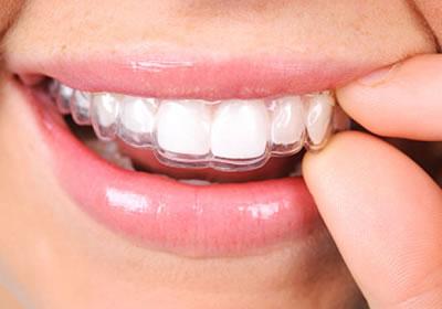 Alinhadores dentários removíveis tipo Invisalign e Clear-Aligner