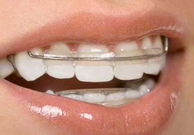 Aparelhos ortopédicos funcionais dos maxilares